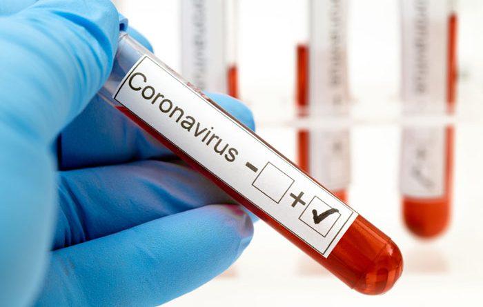 Doi suceveni cu coronavirus s-au pierdut pe drum  de la DSP la INSP. Potrivit statisticii naționale, în județ sunt raportate azi 3.534 cazuri confirmate, ieri fiind raportate  3.536